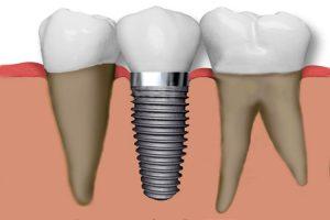 Clinicas Dentales Valencia